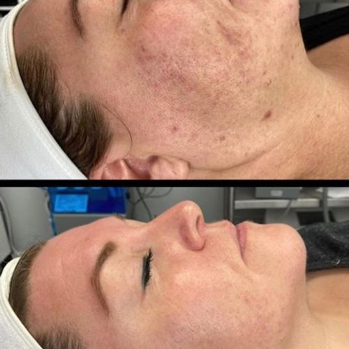 $300 towards a Halo Treatment at Cosmederm