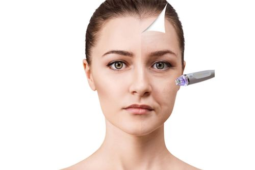 Image for $100 towards a PRP Session at Cosmederm